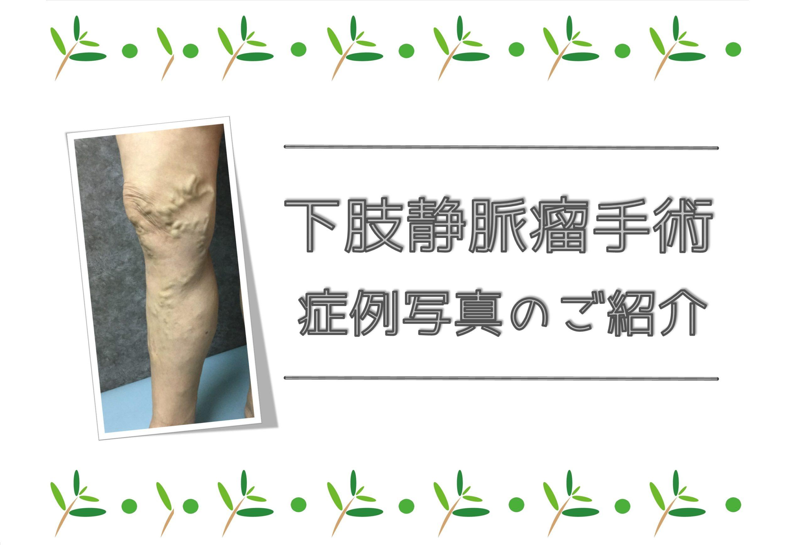 下肢静脈瘤の術後症例写真(by大宮セントラルクリニック)